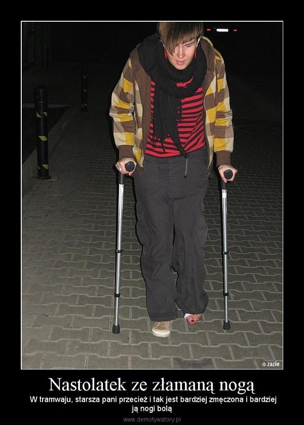 Nastolatek ze złamaną nogą –  W tramwaju, starsza pani przecież i tak jest bardziej zmęczona i bardziejją nogi bolą
