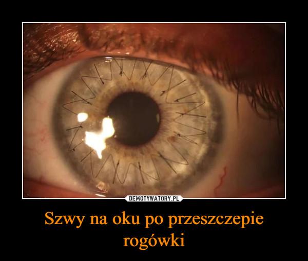 Szwy na oku po przeszczepie rogówki –