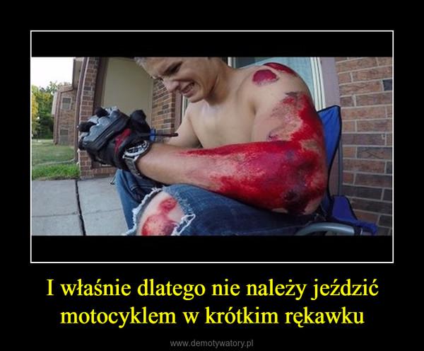 I właśnie dlatego nie należy jeździć motocyklem w krótkim rękawku –