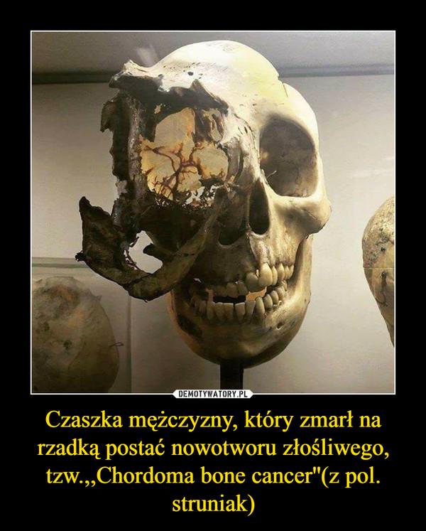 Czaszka mężczyzny, który zmarł na rzadką postać nowotworu złośliwego, tzw.,,Chordoma bone cancer''(z pol. struniak) –