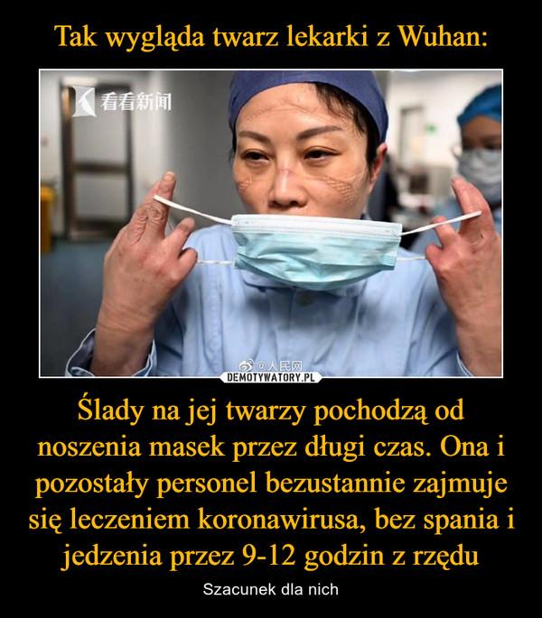 Ślady na jej twarzy pochodzą od noszenia masek przez długi czas. Ona i pozostały personel bezustannie zajmuje się leczeniem koronawirusa, bez spania i jedzenia przez 9-12 godzin z rzędu – Szacunek dla nich