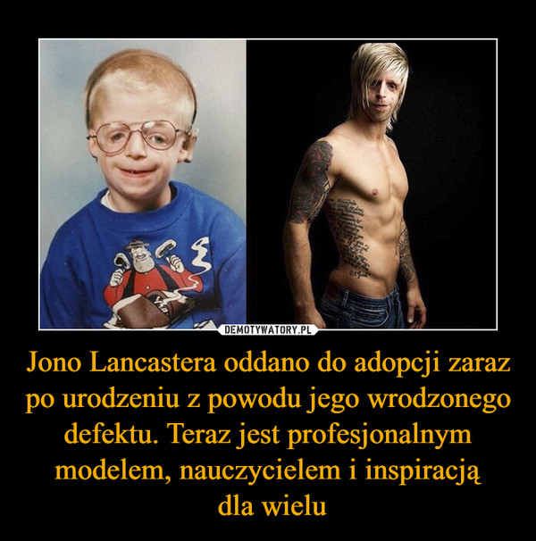 Jono Lancastera oddano do adopcji zaraz po urodzeniu z powodu jego wrodzonego defektu. Teraz jest profesjonalnym modelem, nauczycielem i inspiracją dla wielu –