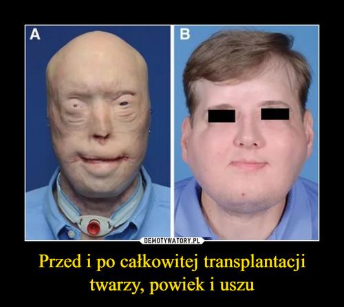 Przed i po całkowitej transplantacji twarzy, powiek i uszu
