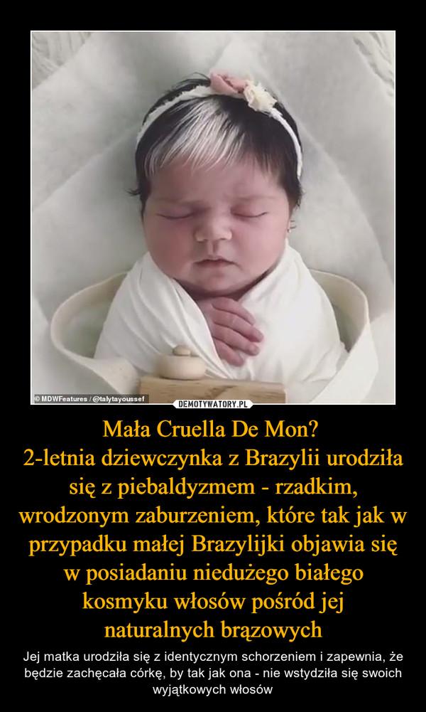 Mała Cruella De Mon? 2-letnia dziewczynka z Brazylii urodziła się z piebaldyzmem - rzadkim, wrodzonym zaburzeniem, które tak jak w przypadku małej Brazylijki objawia się w posiadaniu niedużego białego kosmyku włosów pośród jejnaturalnych brązowych – Jej matka urodziła się z identycznym schorzeniem i zapewnia, że będzie zachęcała córkę, by tak jak ona - nie wstydziła się swoich wyjątkowych włosów