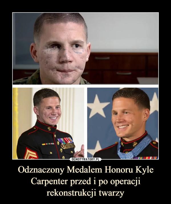 Odznaczony Medalem Honoru Kyle Carpenter przed i po operacji rekonstrukcji twarzy –