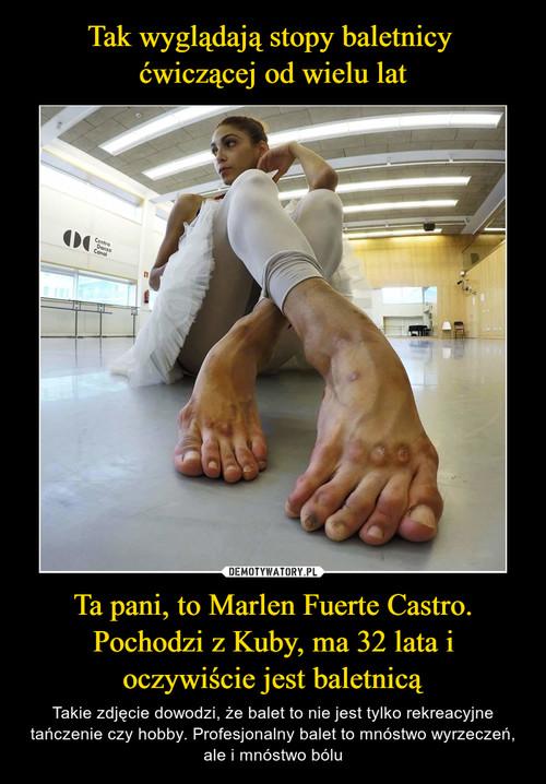 Tak wyglądają stopy baletnicy  ćwiczącej od wielu lat Ta pani, to Marlen Fuerte Castro. Pochodzi z Kuby, ma 32 lata i oczywiście jest baletnicą